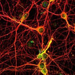 حافظههای گرافنی با عملکردی شبیه به مغز انسان