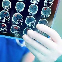 درمان سرطان مغز موشها با فناوری نانو